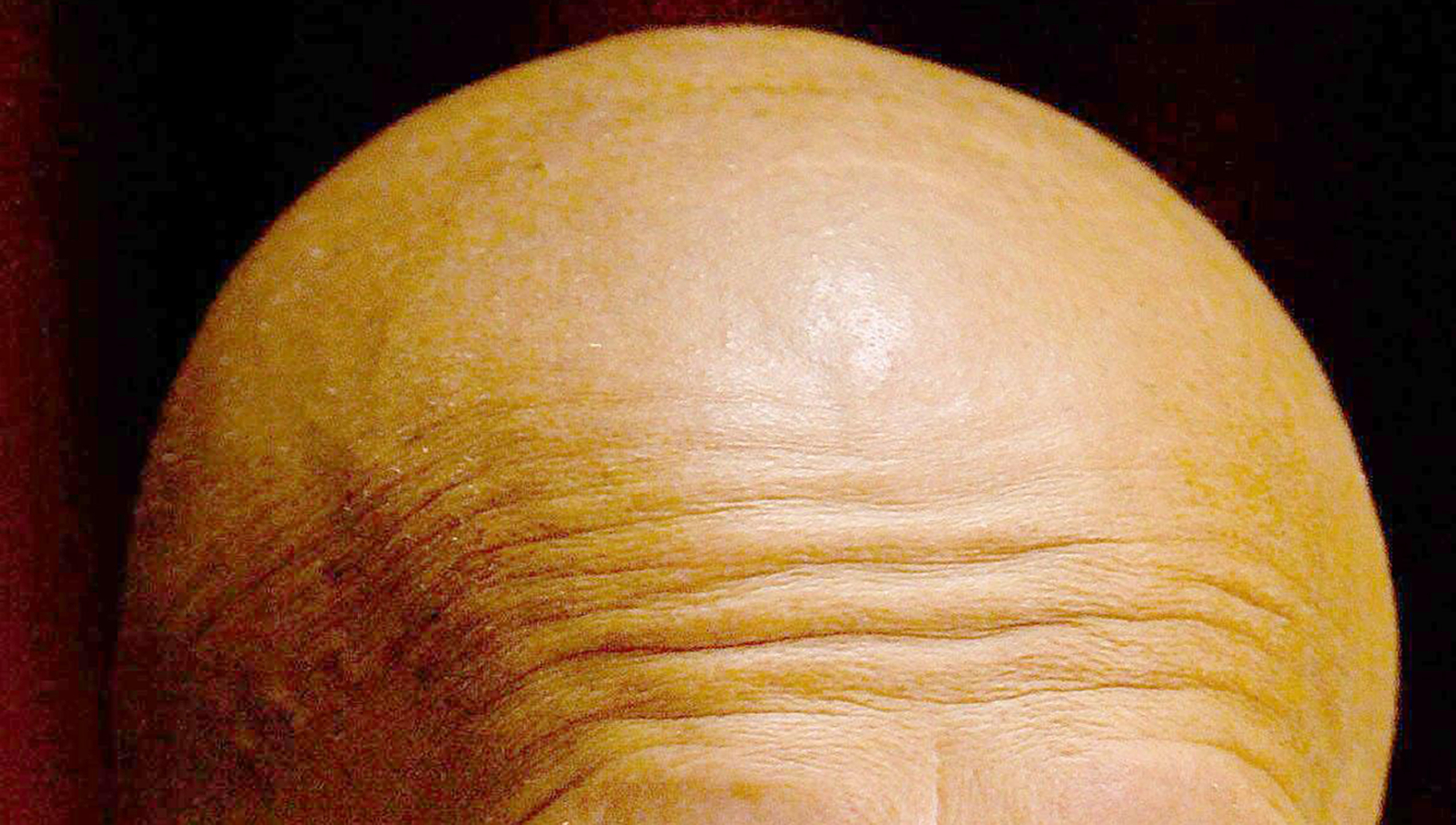 Treatment For Baldness With 'Enormous Potential' Found By Scientists